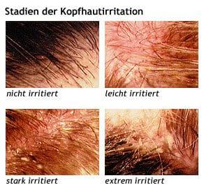 Kopfhautirritation